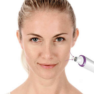 <p>Beurer FC 76 microdermabrasion Use picture</p>